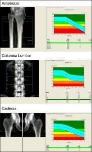 Densitometria-sevilla-caderas-columna-antebrazo-Sevilla